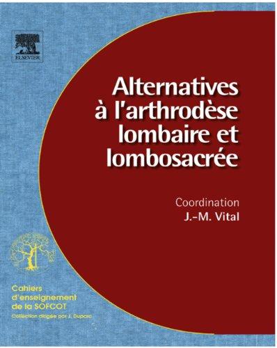 Alternatives à l'arthrodèse lombaire et lombosacrée (n° 96) (Cahiers d'enseignement de la SOFCOT) (French Edition)