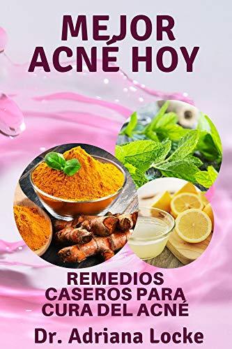 Mejor acné hoy: Remedios caseros para cura del acné