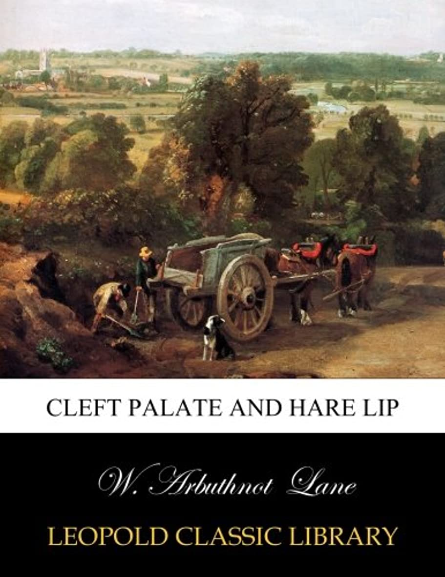 Cleft palate and hare lip