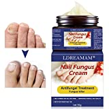 Traitement ongles,Champignon Ongles Traitement,Anti fungal,Traitement Ongles contre la mycose des ongles des pieds,Favorise la Repousse d'Ongles Sains