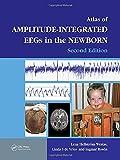 An Atlas of Amplitude-Integrated EEGs in the Newborn (Encyclopedia of Visual Medicine Series)
