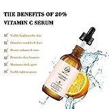Zoom IMG-1 rosvanee siero vitamina c per