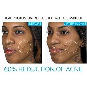 La Roche-Posay Effaclar Duo Dual Action Acne Spot Treatment Cream with Benzoyl Peroxide, 0.67 Fl oz