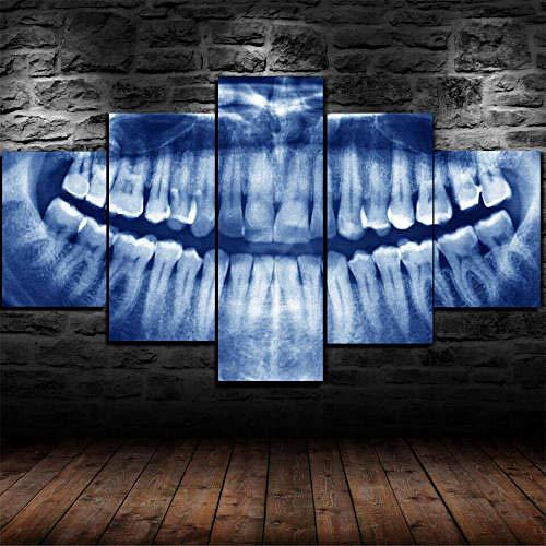 13Tdfc Cuadro En Lienzo 150X80Cm Dentista De Rayos X Dental con Marco Dental Impresión De 5 Piezas Material Tejido No Tejido Impresión Artística Imagen Gráfica Decoracion De Pared