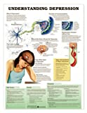 Understanding Depression Anatomical Chart Unmounted-9974PU