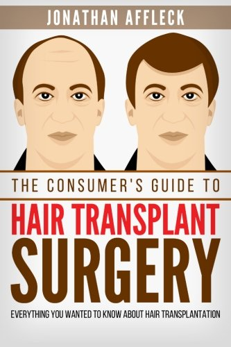 The Consumer's Guide to Hair Transplant Surgery: Everything You Wanted to Know About Hair Transplantation