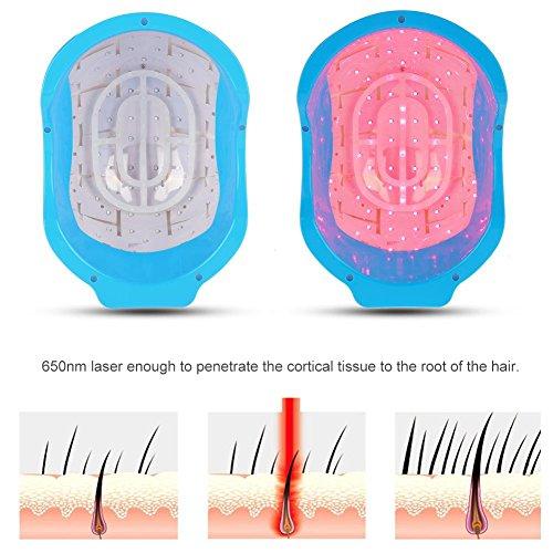 Prevención de la Pérdida de Cabello, Laser Terapia pelo Crecimiento Casco...