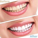 Zoom IMG-1 2 paia dentiere denti cosmetici