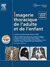 Imagerie thoracique de l'enfant et de l'adulte (French Edition)