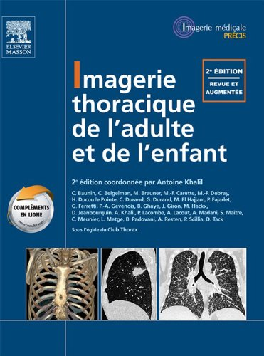 Imagerie thoracique de l'enfant et de l'adulte: Pilon Partiel 15/2/16 (Imagerie médicale : Précis) (French Edition)