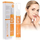 Freckle Remover Cream,VC Dark Spot Removal Skin Tag Removal,Mole Remover Pen Melasma Remover