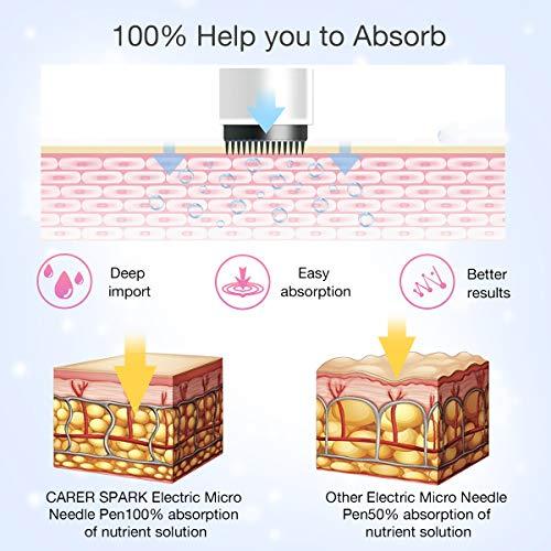 Carer Spark, Elektrischer Mikro Nadelstift, 0,25-2,0 mm, Mit 5 Kartuschen, Kabellos, wiederaufladbar, Anti-Aging Hauttherapie, Falten entfernen Hautstraffung, Akne Narbenpflege