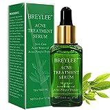 Anti Pickel, BREYLEE Akne Behandlung Anti Pickel Serum Anti Akne Serum Teebaum Serum Hautpflege gegen Akne Haut Gesichtspflege für Anti Pickel und Anti Akne(17ml, 0.6fl oz)