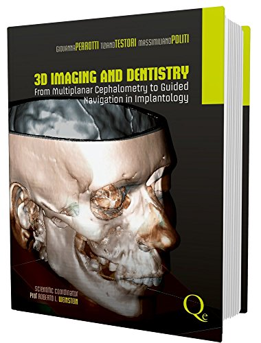 3D imaging and dentistry from multiplanar cephalometry to guided navigation in implantology