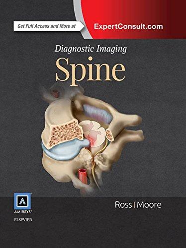 Diagnostic Imaging: Spine E-Book (English Edition)