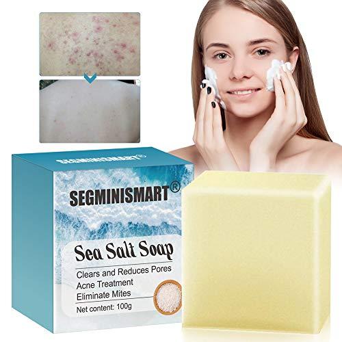 Akne Seife,Gesicht Seife,Sea Salt Seife,Natural Seife,Für Akne, Ekzem, Gesichtsreinigung Behandlung,Entschlackender Gesicht,Ideal für Tiefenreinigung