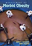 Management of Morbid Obesity (English Edition)