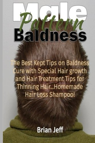 Male Pattern Baldness: The Best Kept Tips On Baldness Cure With Special Hair Growth and Hair Treatment Tips for Thinning Hair ...Homemade Hair Loss Shampoo!