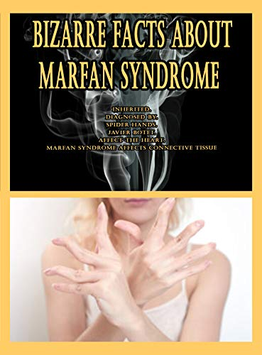 Bizarre Facts About Marfan Syndrome: Inherited, Diagnosed By, Spider Hands, Javier Botet, Affect the Heart, Marfan Syndrome Affects Connective Tissue (English Edition)