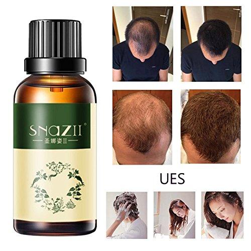 Huiles Croissantes,Fulltime 30ml cheveux essence de croissance avancée cheveux amincissement et supplément de perte de cheveux