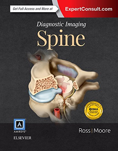Compare Textbook Prices for Diagnostic Imaging: Spine 3 Edition ISBN 9780323377058 by Ross MD, Jeffrey S.,Moore MD, Kevin R.