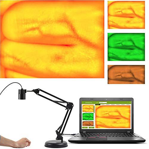 Infrarot-Venendetektor-Viewer - Medizinischer Transilluminator-Venenpositionierungsdetektor, Beleuchtungsvisualisierungslampe, Gefäßanzeige Der Venösen Bildgebung