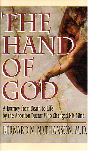 Image of The Hand of God