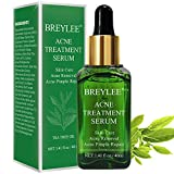 Tea Tree Acne Treatment Serum, Clear Skin Serum for Clearing Severe Acne,Breakout, Remover Pimple and Repair Skin (40ml, 1.41fl oz)