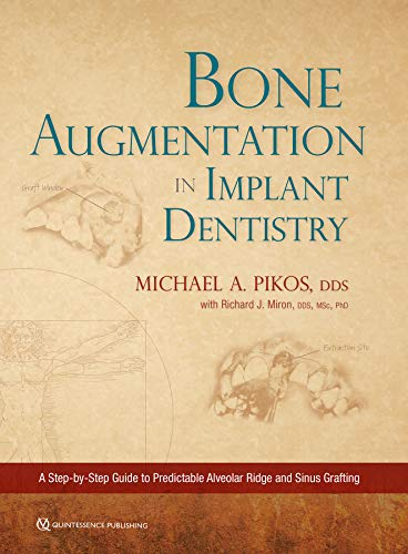 Compare Textbook Prices for Bone Augmentation in Implant Dentistry 1 Edition ISBN 9780867158250 by Pikos, Michael A.