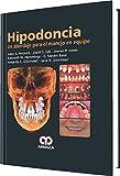 Hipodoncia. Un abordaje para el manejo en equipo (Spanish Edition)