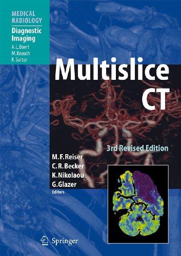 Multislice CT (Medical Radiology)