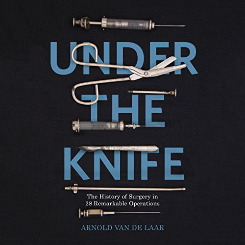 Couverture de Under the Knife