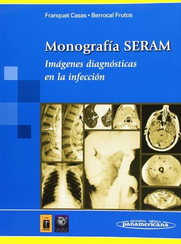 Monografía SERAM: Imágenes diagnósticas en la infección (Casas / Frutos)