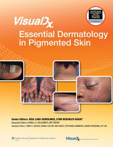 VisualDx: Essential Dermatology in Pigmented Skin (VisualDx: The Modern Library of Visual Medicine) (English Edition)