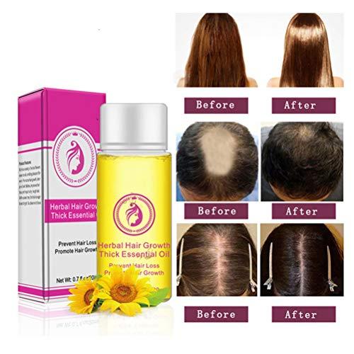 BSTQC Hair Growth Serum,20mL Powerful Hair Growth Care Essence Oil 20ml Anti-Hair Loss Faster Grow Thick Hairs