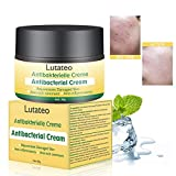 Natural Herbal Eczema Skin Cream, Cream For Psoriasis, Eczema, and Dermatitis, Treatment For