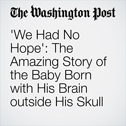 'We Had No Hope': The Amazing Story of the Baby Born with His Brain outside His Skull cover art