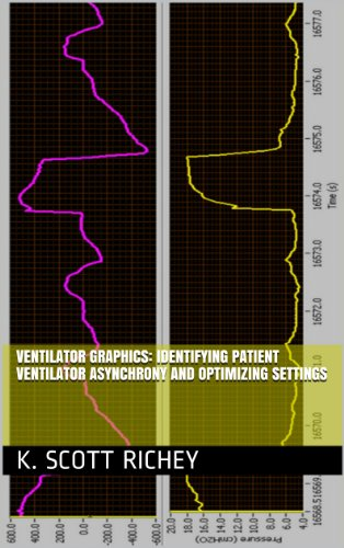 Ventilator Graphics: Identifying Patient Ventilator Asynchrony and Optimizing Settings (English Edition)