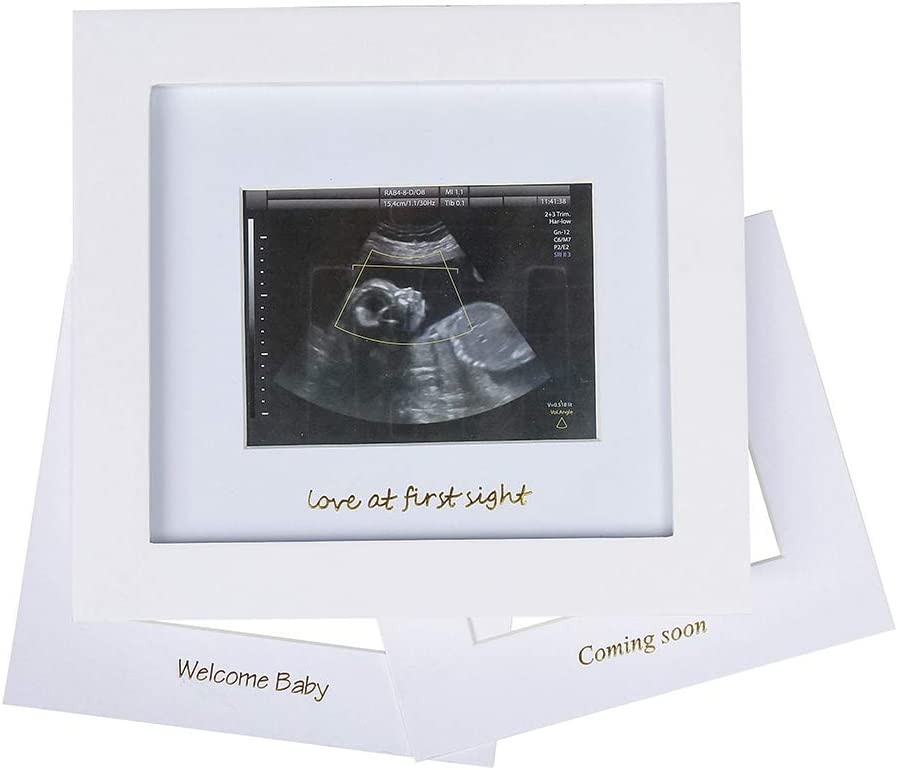 Gender Reveal Party,Baby Nursery Decor Baby Sonogram Photo Frame Idea Gift for Expecting Parents,Baby Shower 1st Ultrasound Picture Frame Gold Text, Black
