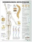 Understanding Osteoporosis Anatomical Chart