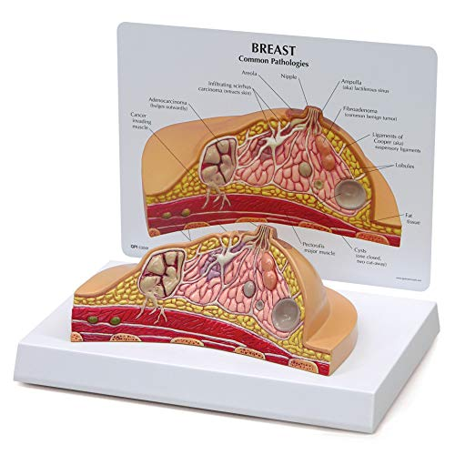 Breast Cross-Section Model | Human Body Anatomy Replica of Breast w/Common Pathologies for Doctors...