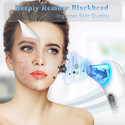 Blackhead Remover Pore Vacuum Cleaner - LONOVE Upgraded Blue Light Pore Cleaner Blackhead Vacuum Electric Comedone Acne Extractor Kit Whitehead Black Head Removal Tool,LED Screen and 4 Porbes