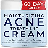 Best Acne Treatment For Faces - Ayadara Moisturizing Acne Treatment Cream | Salicylic Acid Review