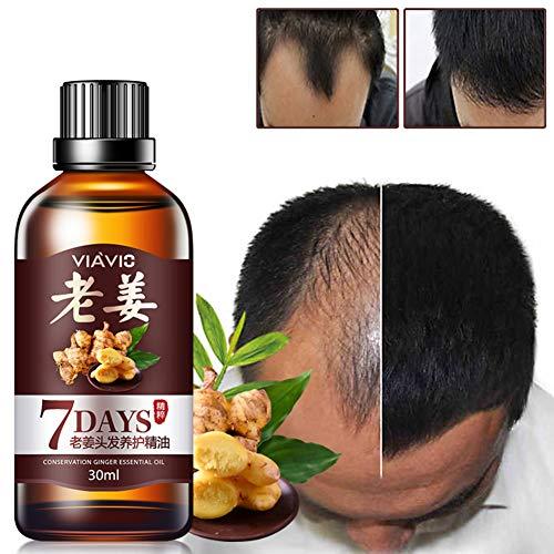 DAGEDA New Ginger Hair Growth Oil Essence, Stops Hair Loss, Dense Thicken Hair, Treatment Balding Supports Healthy Hair Growth for Women & Men (30ml)