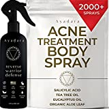 Ayadara Cystic, Hormonal, & Severe Acne Body Spray | Chest, Shoulder, Butt, Thigh, & Back Acne Treatment for Men, Women, & Teens | Tea Tree & Salicylic Acid Mist for Pimple Breakouts | 2000+ Sprays