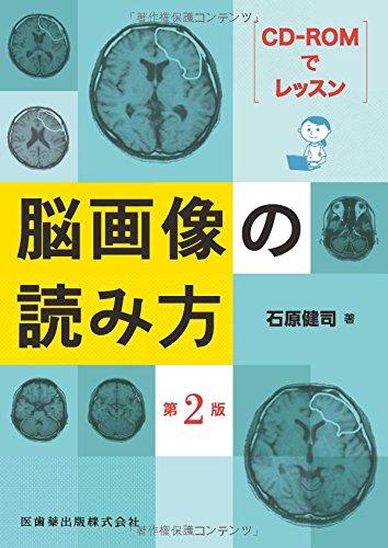 CD-ROMでレッスン 脳画像の読み方 第2版の詳細を見る