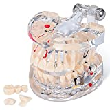 Annhua Transparent Tooth Model Dental Disease Implant Teeth Model Removable, Dentist Standard Tooth Pathological Demonstration - Teaching Learning Tool for Dentists, Patients, Teachers and Students