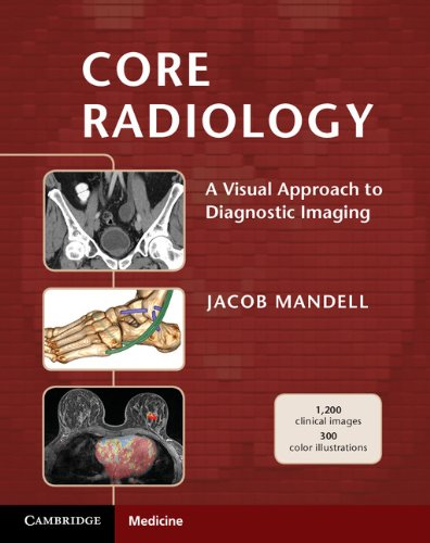Core Radiology: A Visual Approach to Diagnostic Imaging (Kindle Edition)