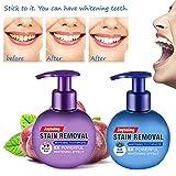 Élimination des taches de dentifrice, Type de presse Pâte dentifrice au bicarbonate de soude Dentifrice, sans Fluorure, Intensive Stain Removal Whitening