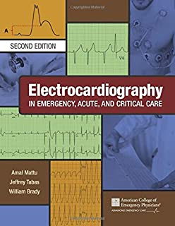 Electrocardiography in Emergency, Acute, and Critical Care